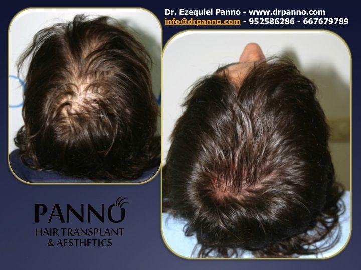 FOLICARE: es nuestra exclusiva tecnica de tratamientos asequibles y naturales sin medicación ni cirugía para revitalizar tu pelo y cuero cabelludo.