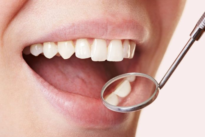 8 Working Home Remedies To Remove Tartar And Plaque From Teeth  Oral health is important for the overall well-being. If you are suffering from plaque or tartar on your teeth? Do not allow it to trouble anymore with either swollen or bleeding gums, tooth pain, etc. React now to remove the tartar by practicing different home remedies to keep plaque at bay.   #PreventTartar #BleedingGums