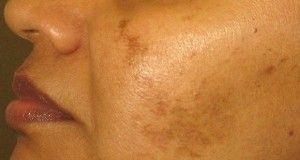 Les taches blanches de pigment sur le corps que ce peut être