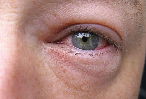Pinkeye (Conjunctivitis) Pictures: Allergic, Viral, and Bacterial Conjunctivitis  Symptom of Lupus SLE!