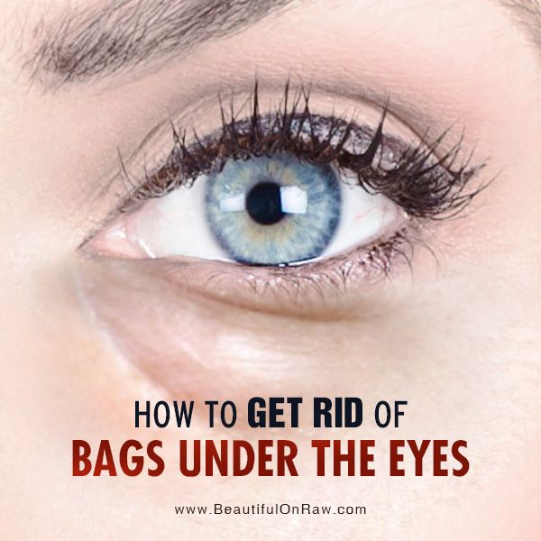 How to Get Rid of Bags Under the Eyes | Beautiful on Raw