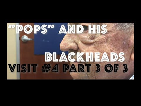 """""""Pops"""" and his blackhead extractions: Visit #5 including skin biopsy - YouTube"""