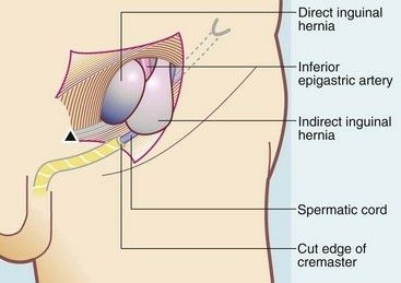 Best 25+ Hernia inguinal ideas on Pinterest | Umbilical ...