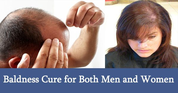 Baldness Cure for Both Men and Women