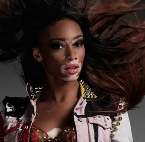 This stunning model Chantelle Brown-Young with Vitiligo will change your definition of #beauty