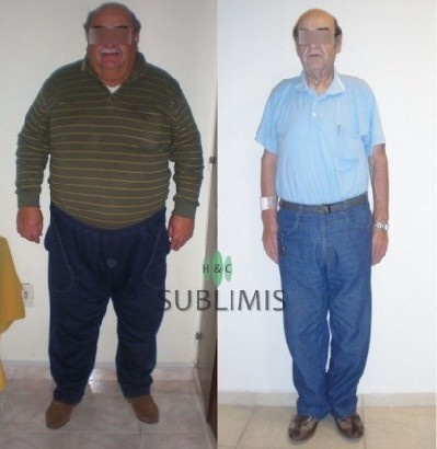 Operacion de Manga Gastrica, foto de antes y despues. Cirugia realizada en Cordoba, Argentina por medicos de Sublimis.  Gastric Sleeve Surgery abroad