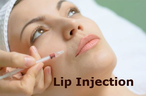 All About Lip injections : Cost & before and after pics of Lip injection !