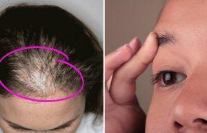 El aceite de ricino es excelente para tu piel y cabello