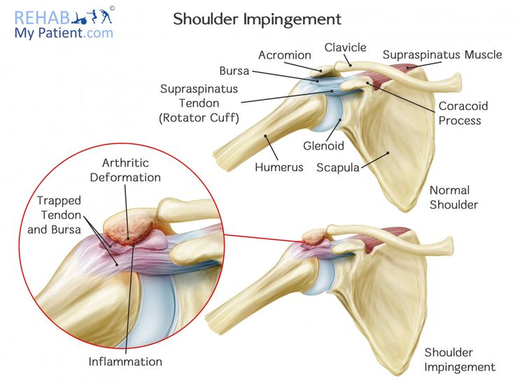 24 best Shoulder joint images on Pinterest | Shoulder joint, Anatomy ...