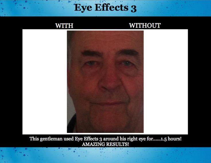 NuCerity Eye Effects 3. Works like Botox without the needles!!