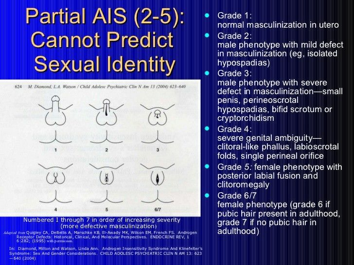androgen insensititivy syndrome Androgen insensitivity refers to an inability of the body to respond properly to male sex hormones (androgens) produced during pregnancy this occurs because of a change (mutation) in a gene involved in the production of the protein inside cells that receives the androgen hormone and instructs the.