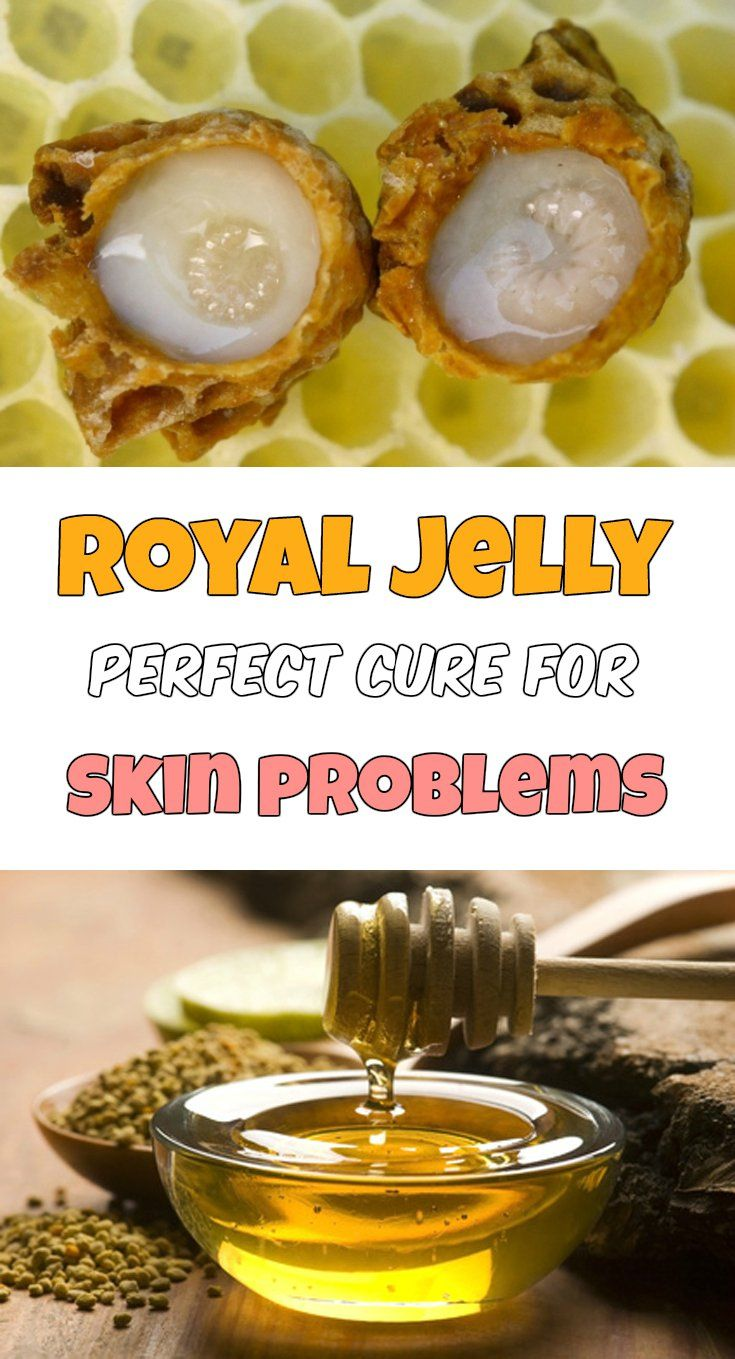 Royal jelly - Perfect cure for skin problems