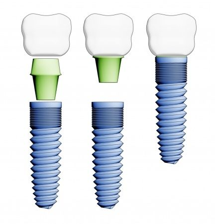 Que marcas de implantes dentales son buenas? Son todas las marcas iguales?