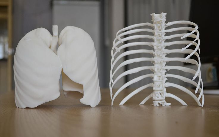 3D printing in Medical .we believe that 3D printing will lead us a better life
