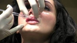 Juvederm Ultra XC Lip Augmentation Filler Injection in Washington DC, via YouTube.