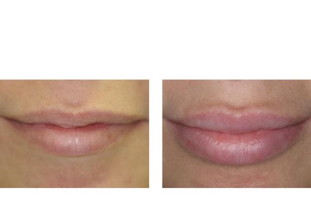 Phi clinic lip fillers