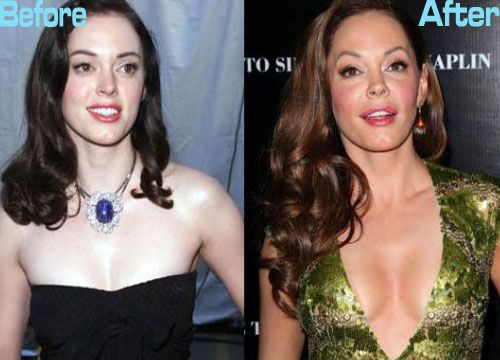 Rose Mcgowan Plastic Surgery Before and After Photos