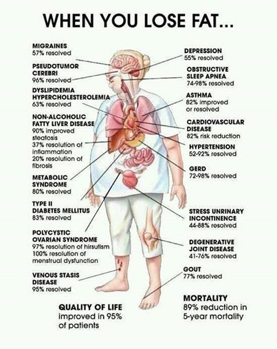 Losing fat is no less than a panacea....Want to know how? Read this info-graph...