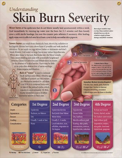 Understanding Skin Burn Severity anatomy poster updated burn classifications and Rule of Nines depicted for burn trauma, EMT/EMS and paramed...