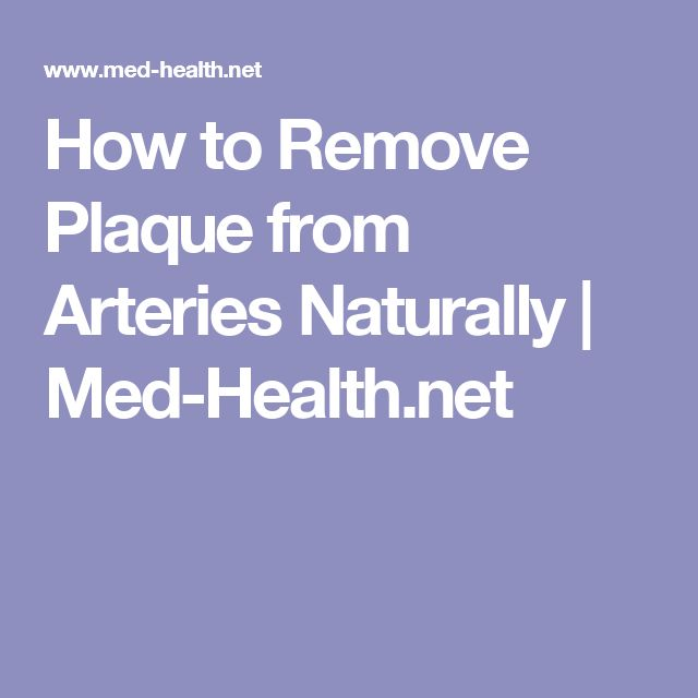 How to Remove Plaque from Arteries Naturally | Med-Health.net