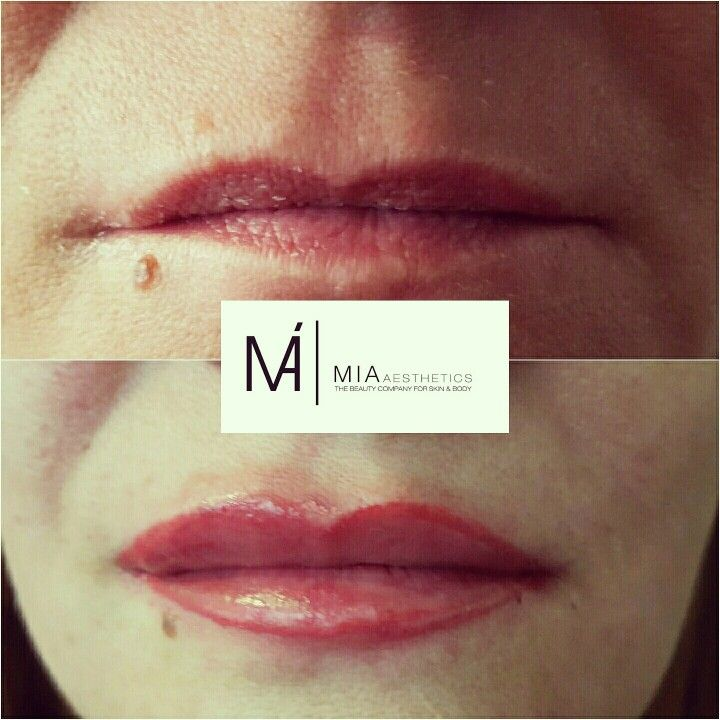 WE LOVE BEAUTY IN PERFECTION  CORRECTION • CONTOURING • FULL COVER  Natural Lips | LaBina Natural Red #MIAAesthetics #Welovebeautyinperfection #MicrobladingHessen #permanentmakeupexpert #PermanentMakeUp #Micropigmentation #pmu #Beauty #Love #Wetzlar #Gießen #Germany #Athens #Thessaloniki #Mykonos #Crete # lips #redlips #lippenkontur