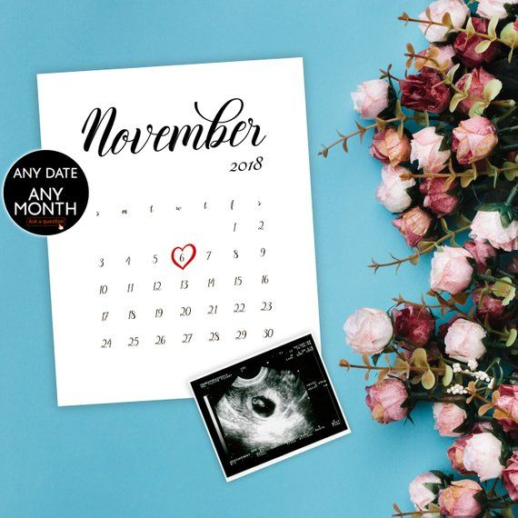 All months Baby Pregnancy Announcement for Social Media EDIT YOURSELF date,Digital file Templett Chalkboard Onesie #bd11 Birth Reveal
