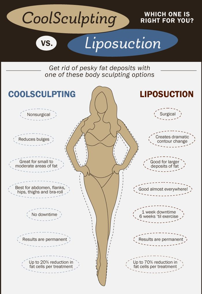 A cool (no pun intended) infographic showing the differences between the CoolSculpting fat freezing procedure and Liposuction