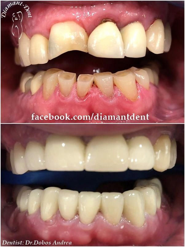 Fluttering Dental Bridge Other Toothjewelry