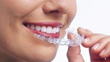 Protetyka. Dzięki nowoczesnej technologii możliwe jest odtworzenie pierwotnego stanu uzębienia przed utratą naturalnych zębów. Protetyka pozwala na uzyskanie naturalnego wyglądu jamy ustnej i stwarza możliwość odbudowy utraconych bądź uszkodzonych zębów. W zależności od potrzeb klienta dobieramy możliwie najlepsze rozwiązania, spośród wielu możliwości, jakie stwarza ta dziedzina. #dentistry