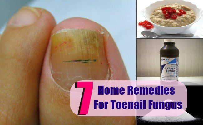 Toenail Fungus Home Remedy Hydrogen Peroxide | Home Painting