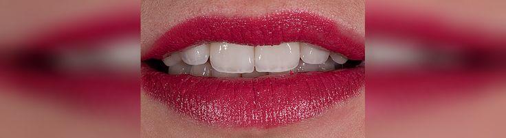 Quels sont les coûts de couronnes dentaires en Roumanie? Nous vous invitons à consulter nos prix ici et contactez-nous immédiatement!http://www.intermedline.com/dental-clinics-romania/ #tourismedentaire #tourismedentaireenRoumanie #voyagedentaire #voyagedentaireenRoumanie #cliniquedentaire #cliniquedentaireenRoumanie #dentistes #dentistesenRoumanie #soinsdentaires #soinsdentairesenRoumanie #couronnesdentaires #couronnesdentairesenRoumanie