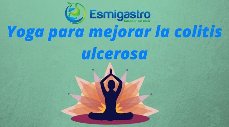 Practica yoga y mejora los síntoma de la colitis ulcerosa