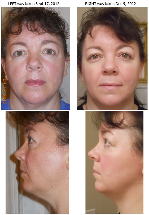 The Luminesce Serum does it again...this is my good friend and her results are amazing! Learn more:http://bit.ly/1A0M3XO
