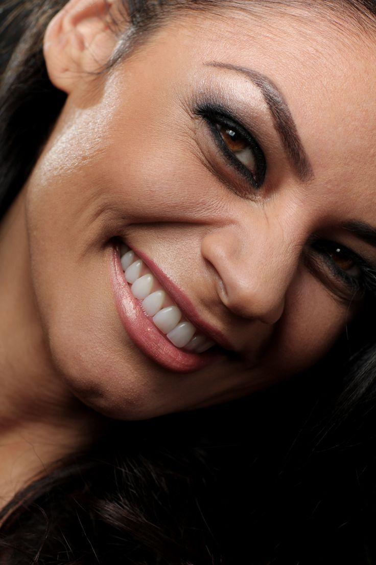 Claudia - #Fatete Ceramice #dsd #dentcof #ExprimaMaiMult  http://www.dentcof.ro/cazuri/claudia