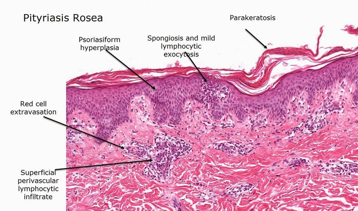7 Best Pityriasis Rosea Images On Pinterest