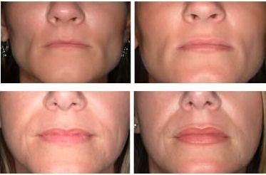 Cupertino | Lip Implant