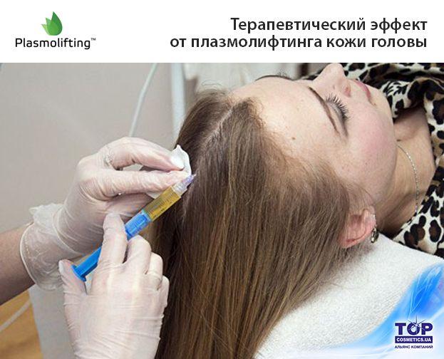 Какую роль в трихологии занимает метод Плазмолифтинг? Какой терапевтический эффект и преимущества Плазмолифтинга? Об этом читайте в статье на нашем сайте: http://topcosmetics.ua/news/professional/plazmolifting-in-trichology.html #cosmetologist #topcosmetics #topcosmetics_ukraine #beautyindustry #beauty #care #cosmetology