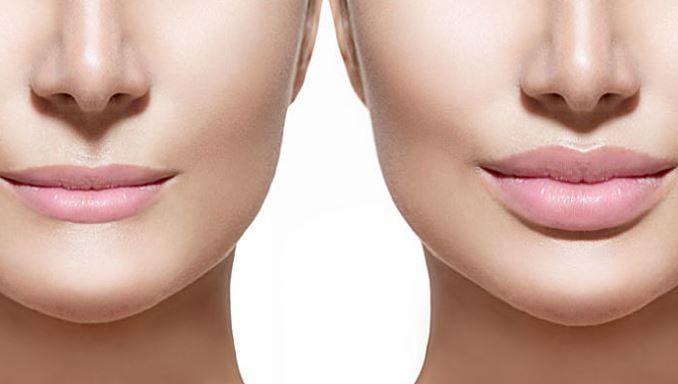 Cómo Aumentar Los Labios Para Que Sean Más Carnosos Y Gruesos De Forma Natural