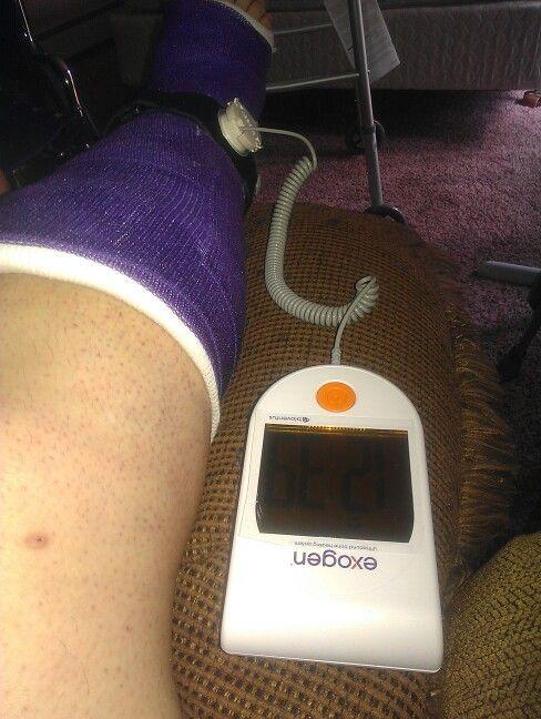 9 Best Leg Images On Pinterest Broken Leg Leg Cast And