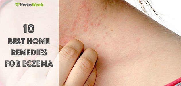 One of effective treatments for eczema involves avoiding substances you are allergic to, but some attacks may still occur. Fortunately, there are many useful natural cures for eczema complaint. The following home remedies for eczema are worth trying.