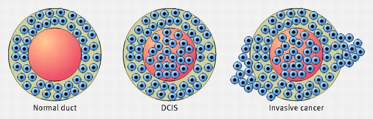 Difference between normal, ductal carcinoma in situ (DCIS), and invasive disease. DCIS is a preinvasive (also termed non-invasive) breast cancer, where proliferations of malignant ductal epithelial cells remain confined within intact breast ducts.