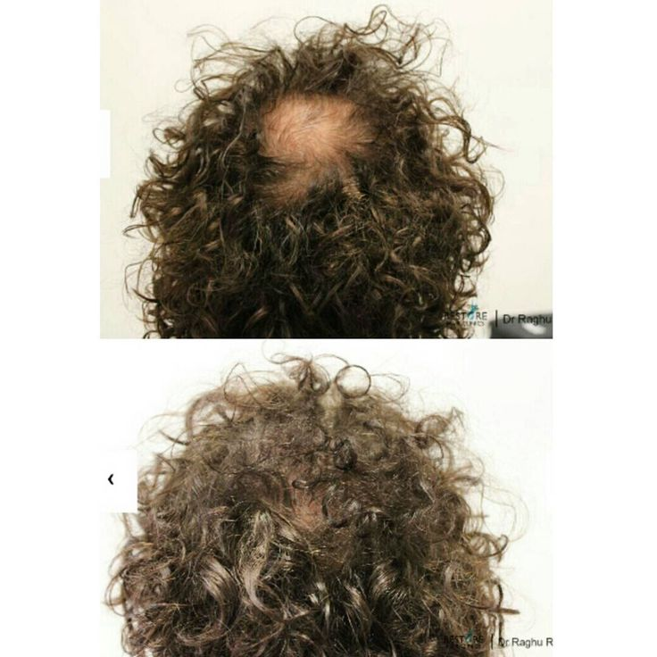 •Before and After•  1407 grafts with a total of 4221 hairs were used in this hair restoration surgery.  Bye bye bald patch! 😉  #hair #hairloss #newhair #hairsurgery #hairrestoration #hairlosstreatment #hairtransplant #hairproblems #fue #follicularunitextraction #balding #baldpatch #beforeandafter #confidence #curlyhair #drraghureddy