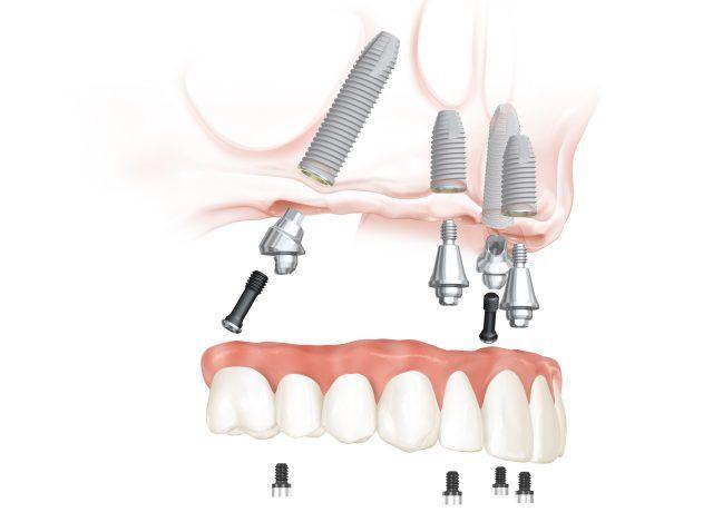 Resultado de imagen para implantes dentales abutment