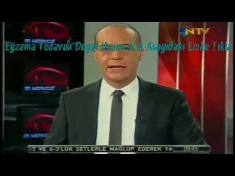 Ahmet Maranki El Egzama Tedavisi  İlaçları İbrahim Saraçoğlu   Atopik Eg...