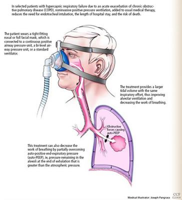 how to become a respiratory therapist in canada