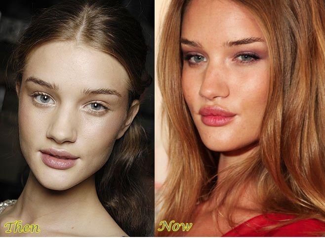 113 best Face Surgeries images on Pinterest Rosie Huntington Whiteley Lips