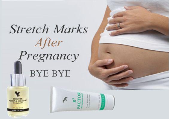 Bye Bye Stretch Marks #pregnancy #SayAloe #foreverliving www.kimandterry.myforever.biz
