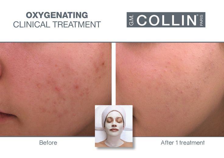G.M. Collin Oxygenating Skin Care - Before & After picture #beauty #cosmetics #skincare #clinical #clinicaltreatment #spa #spatreatment #acne #pimples #oxygenating #OxygenatingSkinCare #gmcollin #gmcollinparis #gmcollinskincare