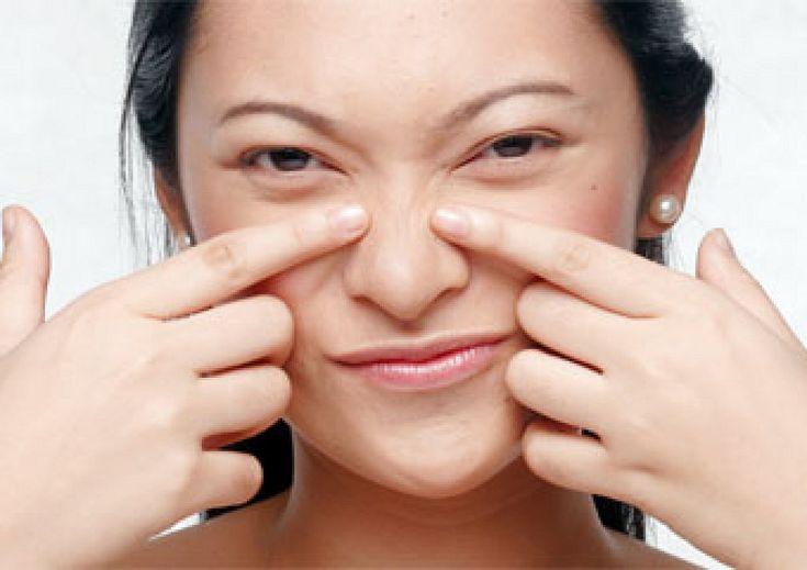 Dime en qué zona de tu cara tienes acné y te diré qué funciona mal en tu organismo.   Cuidar de tu belleza es facilisimo.com