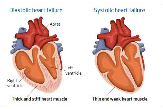 41 best images about cardiology on pinterest